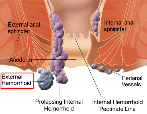 How To Get Rid Of Thrombosed External Hemorrhoids Fast